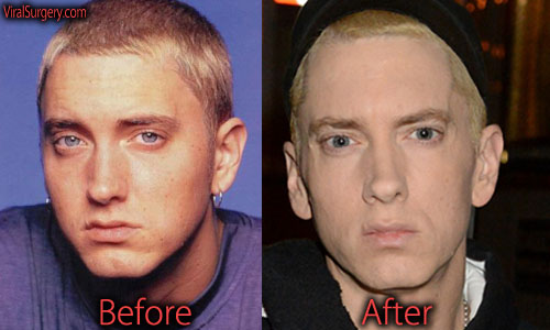 Eminem Before And After Drugs