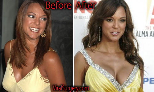 Eva LaRue Plastic Surgery Boobs Job