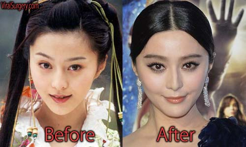 Fan Bingbing Plastic Surgery