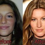 Gisele Bundchen Plastic Surgery Before and After Nose Job