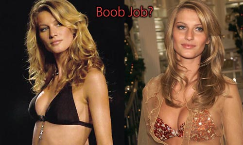 Gisele Bundchen Plastic Surgery Boob Job