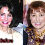 Gloria Vanderbilt Plastic Surgery Before and After Pictures