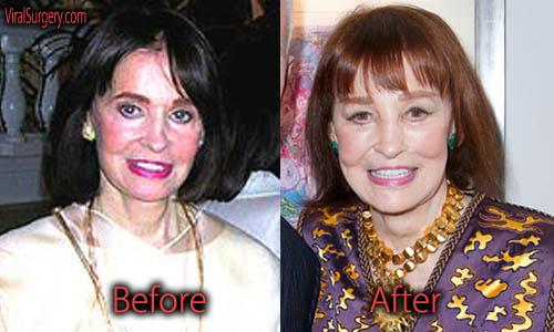 Gloria Vanderbilt Plastic Surgery