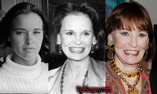 Gloria Vanderbilt Plastic Surgery Facelift
