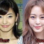 Han Ye Seul Plastic Surgery Before and After Pictures