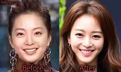 Han Ye Seul Plastic Surgery Nose