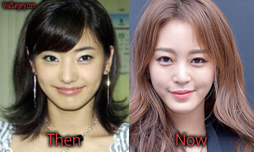 han ye seul plastic surgery before and after eyelid