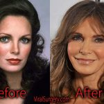 Jaclyn Smith Plastic Surgery Before and After Facelift, Botox Pics