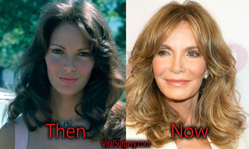 Jaclyn Smith Plastic Surgery Facelift