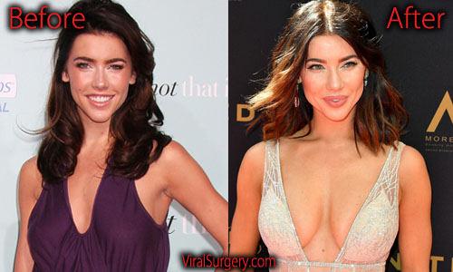 Jacqueline MacInnes Wood Boobs Job