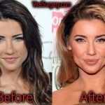 Jacqueline MacInnes Wood Plastic Surgery Before and After Pictures