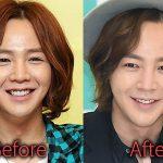 Jang Geun Suk Plastic Surgery Before and After Pictures