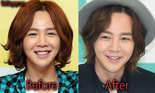 Jang Geun Suk Plastic Surgery Picture
