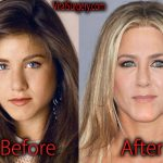 Jennifer Aniston Plastic Surgery Before and After Pictures