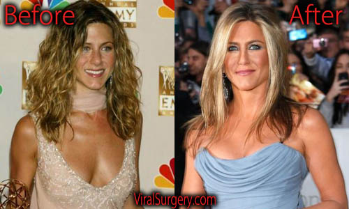Jennifer Aniston Plastic Surgery Boob Job