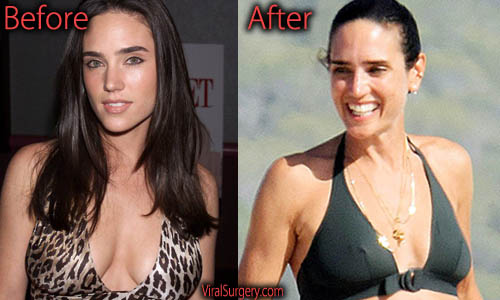 Jennifer Connelly Plastic Surgery Breast Reduction