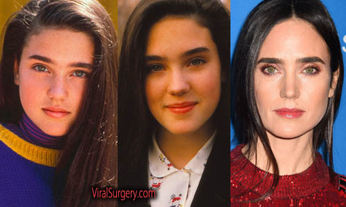 Jennifer Connelly Plastic Surgery