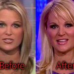 Juliet Huddy Plastic Surgery Before and After Pictures