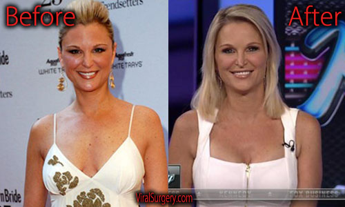 Juliet Huddy Plastic Surgery Boob Job