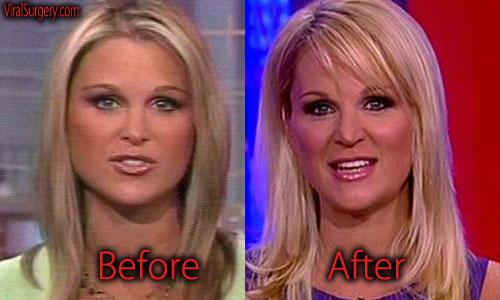 Juliet Huddy Plastic Surgery