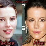 Kate Beckinsale Plastic Surgery: Before and After Botox Pictures