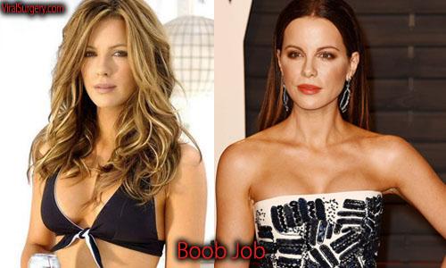 Kate Beckinsale Plastic Surgery Boob Job
