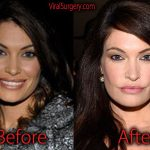 Kimberly Guilfoyle Plastic Surgery Before and After Pictures