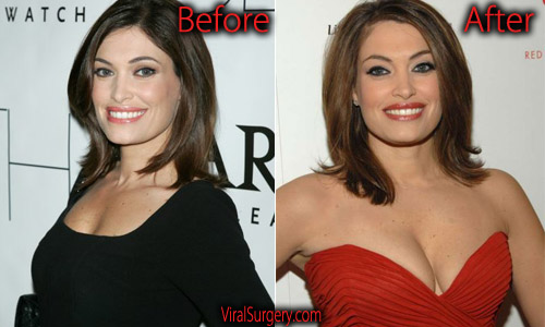 Kimberly Guilfoyle Plastic Surgery Boob Job