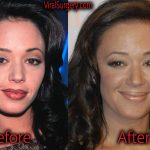 Leah Remini Plastic Surgery Before and After Botox, Boob Job
