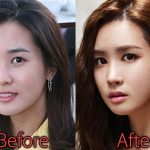 Lee Da Hae Plastic Surgery Before and After Pictures