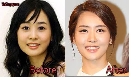 Lee Da Hae Plastic Surgery Picture