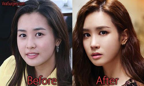 Lee Da Hae Plastic Surgery