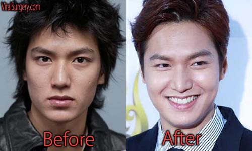 Lee Min Ho Plastic Surgery Picture