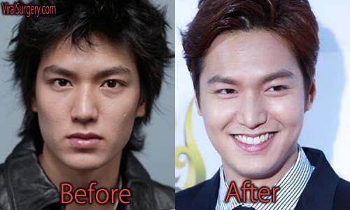Lee Min Ho Plastic Surgery Picture
