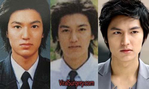 Lee Min Ho Plastic Surgery