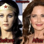 Lynda Carter Plastic Surgery Before and After Pictures
