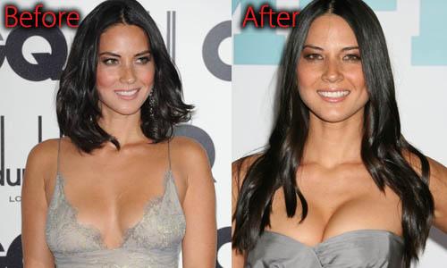 Olivia Munn Plastic Surgery Boob Job