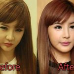 Park Bom Plastic Surgery Before and After Pictures