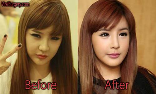 Park Bom Plastic Surgery Nose, Eyelid Surgery
