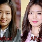Park Shin Hye Plastic Surgery Before and After Rumor Pictures