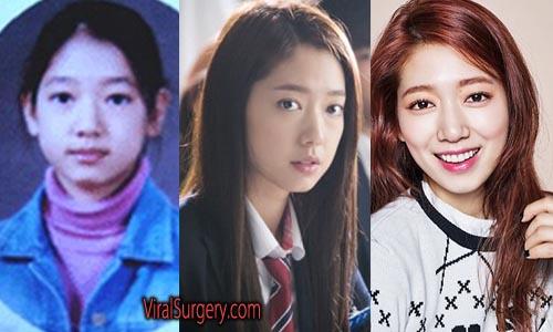 Park Shin Hye Plastic Surgery Picture