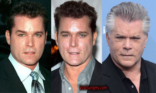 Ray Liotta Plastic Surgery, Before and After Facelift Pictures