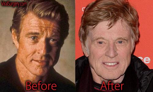 Robert Redford Plastic Surgery Facelift