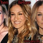 Sarah Jessica Parker Plastic Surgery Before and After Pictures