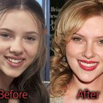 Scarlett Johansson Plastic Surgery Breast Reduction Before After Pics