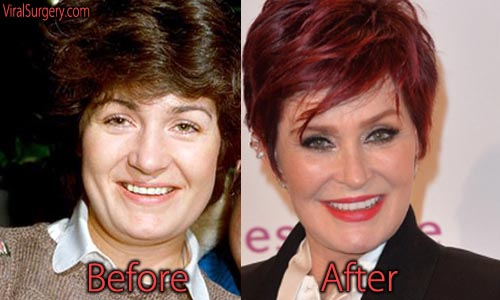 Sharon Osbourne Plastic Surgery Facelift
