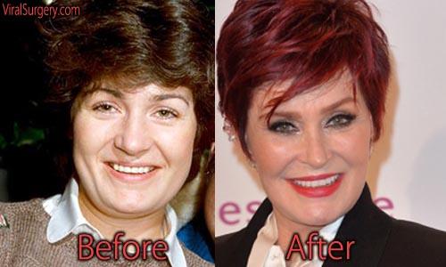 Sharon Osbourne Plastic Surgery Facelift