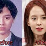 Song Ji Hyo Plastic Surgery Before and After Pictures