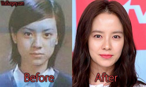 Song Ji Hyo Plastic Surgery Picture