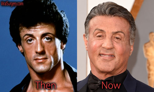 Sylvester Stallone Plastic Surgery Facelift